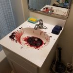 A bloody sink after a biohazard emergency