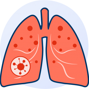 lungs affected by mold